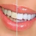 DentalwhiteStrips.com